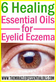 check out these essential oils for eczema on eyelids to find natural relief fast