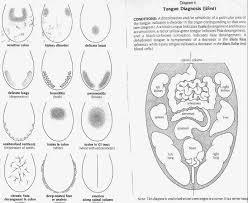 Ayurvedic Tongue Diagnosis Analyse De La Langue Selon L