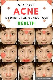 acne and health what your body is