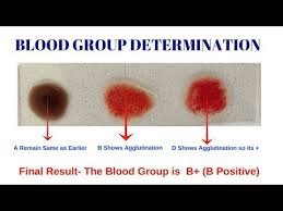 Blood Group Test Different Types Of Blood Group By Solution