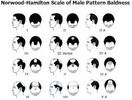 Classifications Of Hair Loss Armani Medical