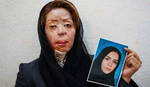 Bildresultat för زن افغانی صیغه