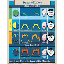 Labor And Delivery Charting Six Essential Labor Birth Charts Childbirth Graphics