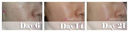 left profile shrunken pores mandelic acid serum 10