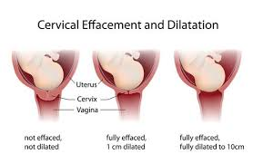 Birth Dilation Chart Dilation Of The Cervix What You Need To Know Bellybelly