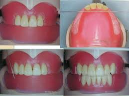 teeth setting arrangement of teeth in complete denture