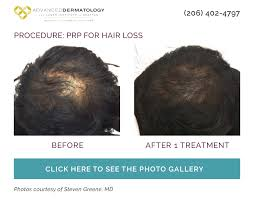 hair loss at any se in life can leave men feeling frustrated and embarred particularly as they try to mainn a youthful appearance