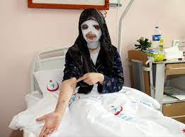 Aceleciliği yüzünden patlayan düdüklü tencere hastanelik etti -