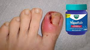 how to treat ingrown toenail using vicks vaporub