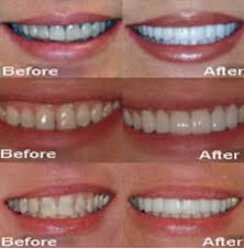 teeth reshaping before and after. what\u0027s involved? tooth contouring teeth reshaping before and after _