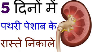 kidney stone pain relief at home in hindi