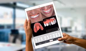 Digital Smile Design App Introducing The Dsdapp 3d Innovation