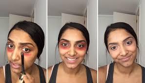 crazy trick to get rid of dark circles