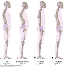 Gait And Posture Analysis Duttons Orthopaedic Examination