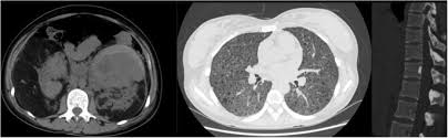 spontaneous rupture of enormous renal