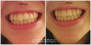 zoo smile brilliant teeth whitening kit review and giveaway wow