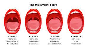 Tonsil Size Chart Understanding The Mallampati Score Clinical Advisor