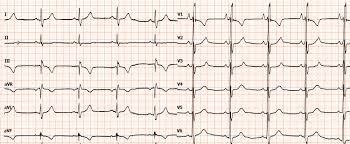 Fibrillazione Ventricolare - Aritmie CardiacheAritmie Cardiache