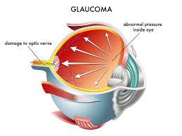 Eye Diseases Chart Glaucoma Fergus Falls Dry Eye Breckenridge Ocular