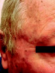 Skin infection | definition of Skin infection by Medical dictionary