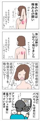 妊婦 帯状 疱疹