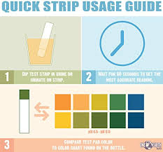 Siemens Urine Test Strip Color Chart Best Picture Of Chart