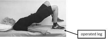 Light Jogging After Hip Replacement Exercises And Stretches After Hip Replacement Sunnybrook