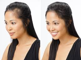Hairstyles Female Hair Loss Hair Restoration From Balding Cure Best Hair Loss Shampoo And