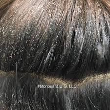 does your client have lice this is