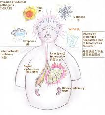 Chinese Medicine Views On The Development Of Headaches