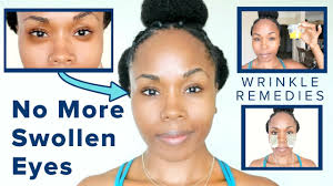 how to get rid of swollen eyes dark circles treat wrinkles under sleepy eyes fast naturally