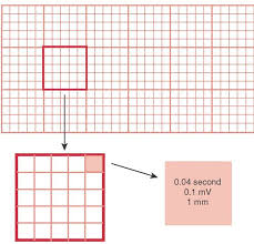 Ekg Graph Paper Under Fontanacountryinn Com