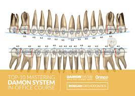 Bracket Placement Chart Borgan Orthodontics