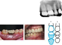 Test Dental Charting Quizlet
