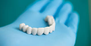 Dental Bridge | Smiles on Queen Dentistry | General Dentistry Bolton