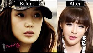 park bom cosmetic surgery nose procedures before after