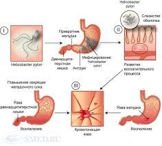 Язвенная болезнь Этиология и патогенез