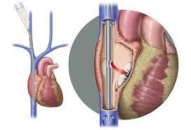 Avalon Elite Bi Caval Dual Lumen Catheter
