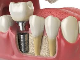 dental implant cost bethesda md