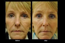 Bellevue Laser And Cosmetic Center Fractional C02 Laser