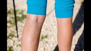 applying sunless ting lotion to cover varicose veins or spider veins how to do at home makeup tips