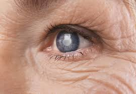 close up of senior woman s eye with cataract