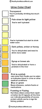 Light Pink Color Urine What Can Your Urine Tell You About Your Health Color Of