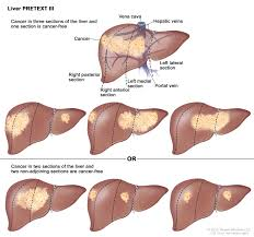 Liver Tumor Size Chart Childhood Liver Cancer Treatment Pdq Health Professional