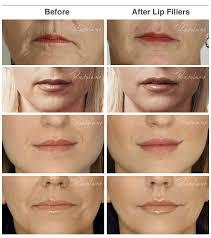 lip enhancement with dermal fillers