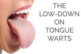 how to remove warts on tongue help my