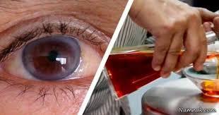 نتیجه تصویری برای شبکیه  چشم وزعفران