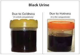 understanding unusual urine color odor