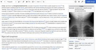 Edit Wiki Help Editing Wikipedia