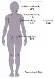 lymphadenopathy cancer therapy advisor